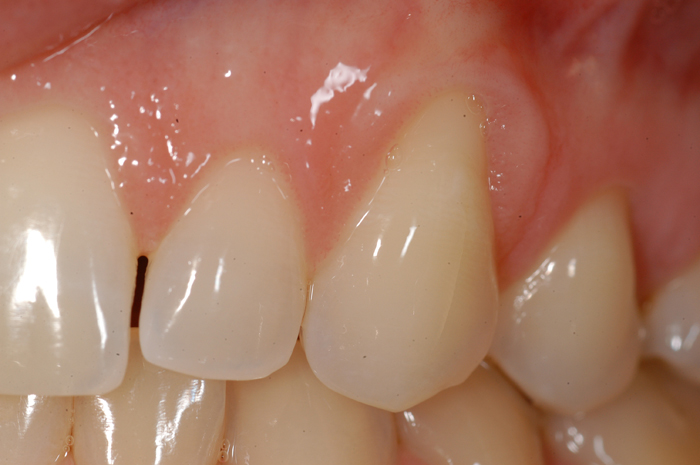 Esthetic Gingival Graft - Before