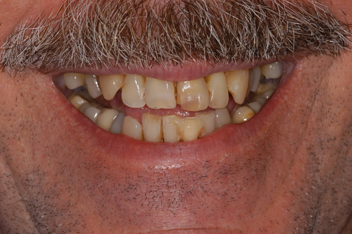 Full Mouth Implant Reconstruction - Before