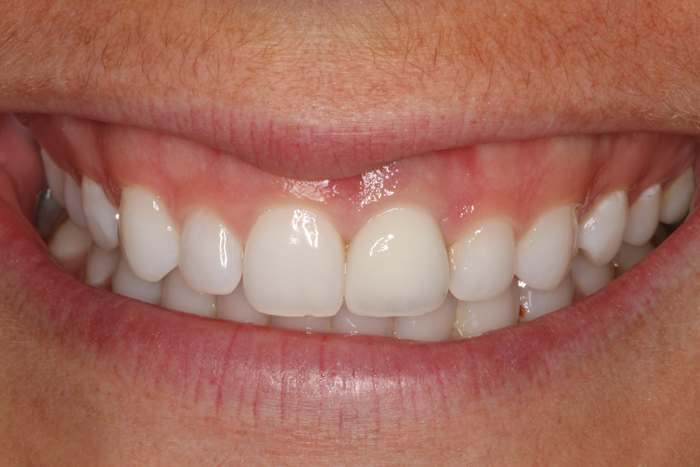 Single Tooth Implant Replacement - 3 Month After