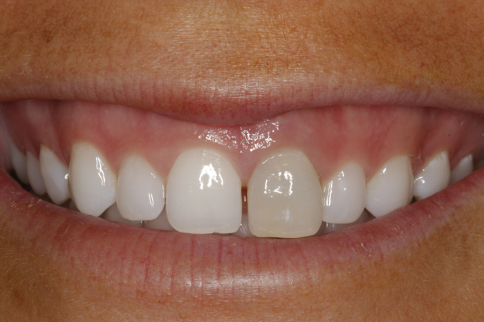 Single Tooth Implant Replacement - Before