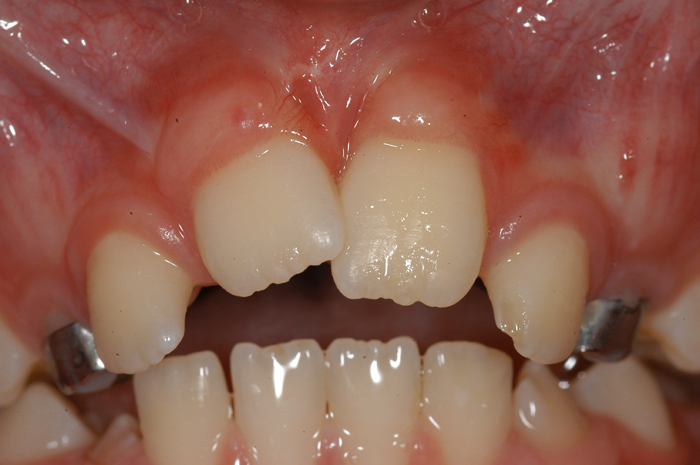 Work Closely With The Orthodontists - 4 Months After Exposure