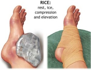 RICE-for-Ankle1