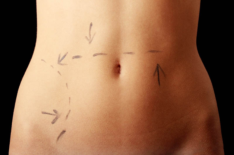 Cirugia de Abdomen in Los Angeles