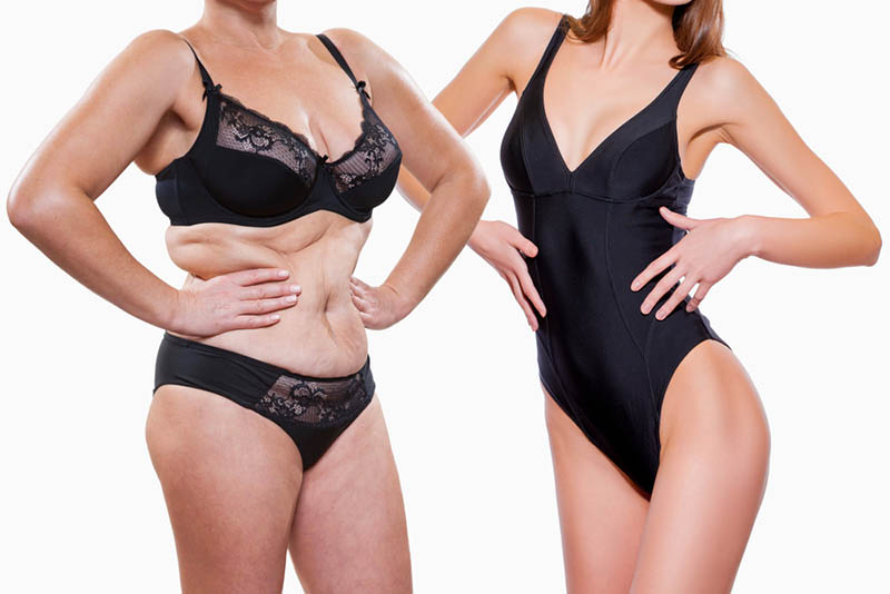 about Liposuction HD in Los Angeles