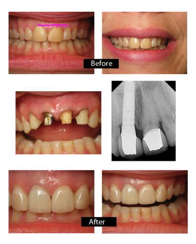 Permanent Gold Teeth Implants : permanent, teeth, implants, Strengthen, Teeth, Roots, TeethWalls
