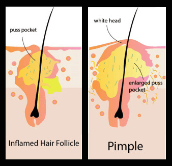 pimples on cheek diagram mono microphone wiring of pimple - diagrams