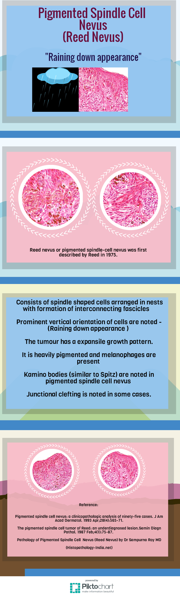 Raining down appearance of Pigmented Spindle Cell Nevus