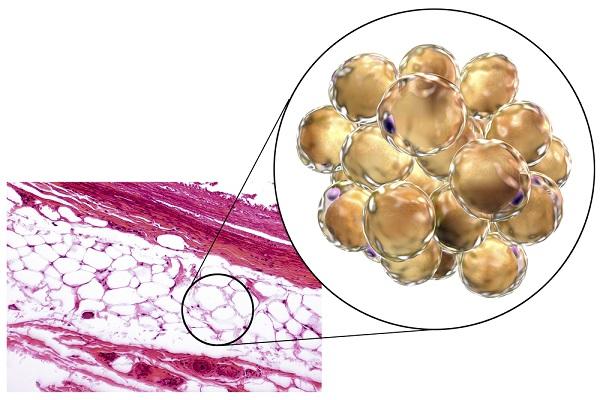 fat tissue