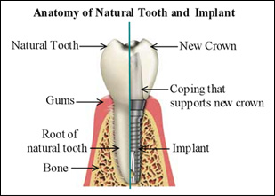 implant-diagram