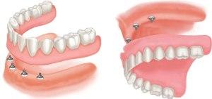 4 implants denture