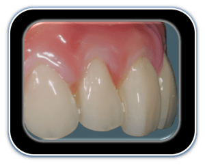 Visiolign_natural_tooth_and_gum