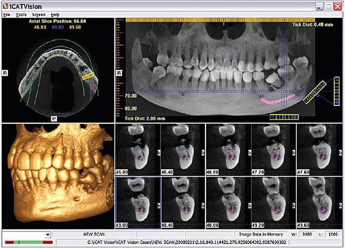 Cone-Beam-CT-scanner-Gendex-CB500-I-CAT