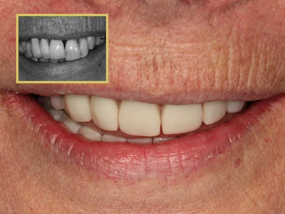 Dental Implants Hereford - Dr Gurs Sehmi Cosmetic Dentist