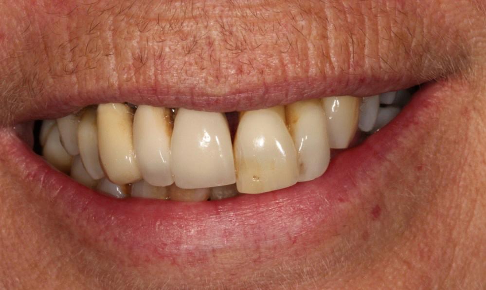 Dental Implants Hereford - Dr Gurs Sehmi Cosmetic Dentist