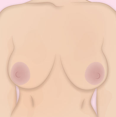 Breast Reduction Pre Surgery