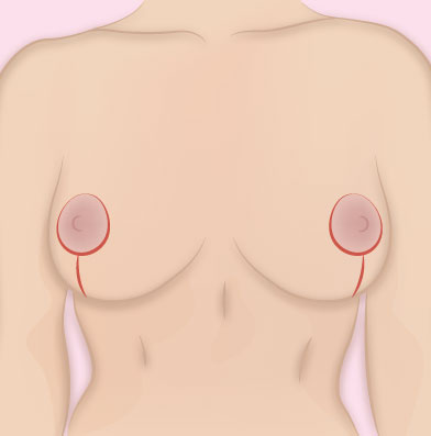 Breast Reduction Post Surgery