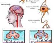 New Study Says Brain Damage Caused by Stroke May Heal with Stem Cells