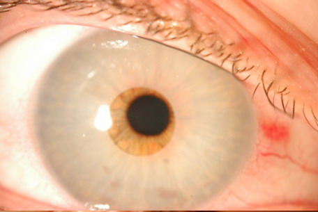 Que es la tension ocular