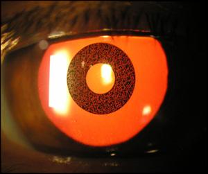 ACI CORNEAL INLAY con la pupila dilatada