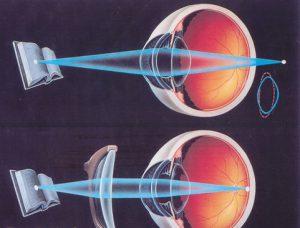 La Presbicia o Vista Cansada y cómo se corrige con gafas