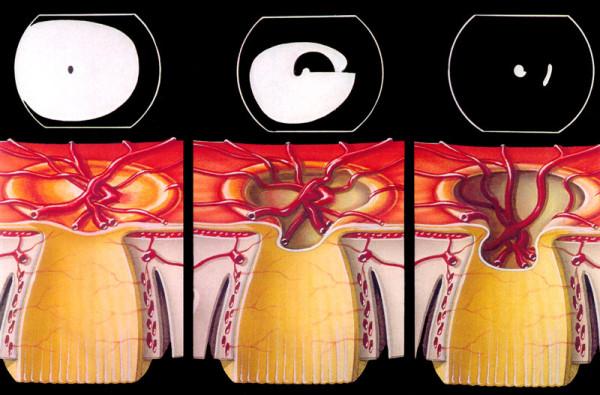 Daño progresivo en el nervio óptico y cómo repercute en el campo de visión