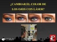 """presentacion """"cambiar el color de los ojos con láser"""""""
