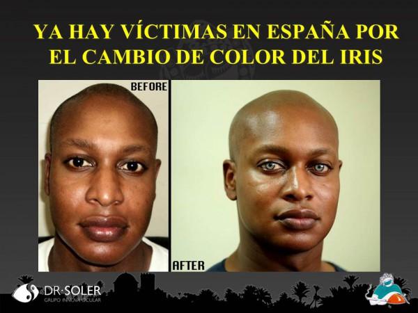 Victimas en España por el cambio de color del iris