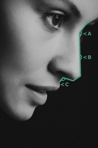 Пропорциите и размерите на носа са водещи параметри при изготвянето на анализ преди ринопластика.