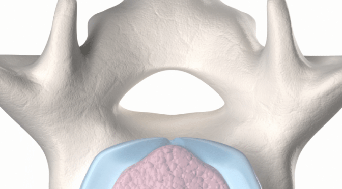 Is it Back Pain or a Herniated Disc?