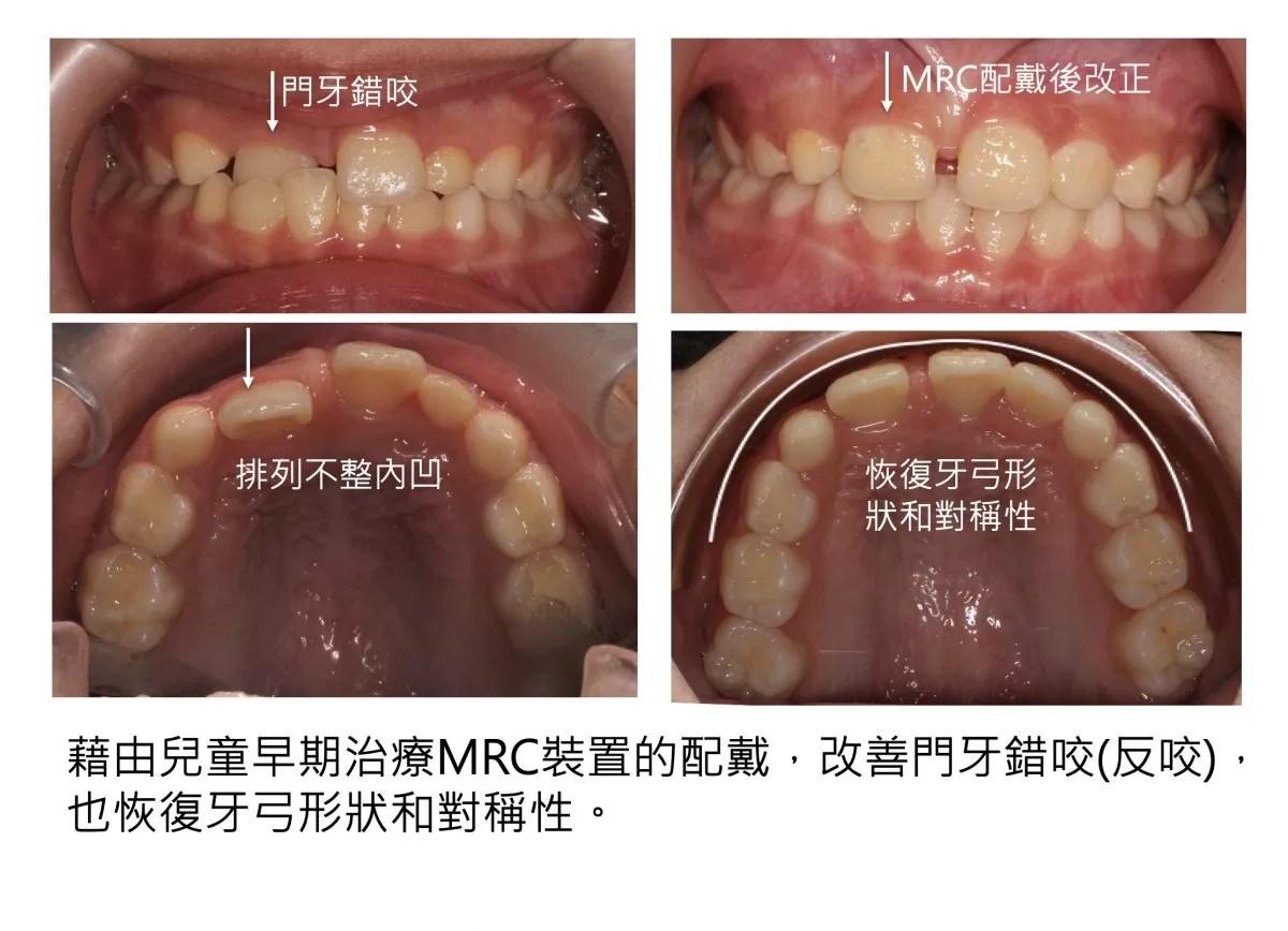 兒童矯正 || MRC早期改善錯咬 | 矯正專科蘇懿瑄醫師