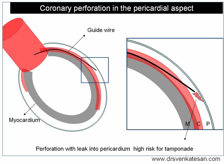 coronary-perforation