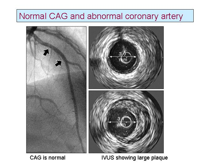What is a normal coronary angiogram  & What is a normal coronary artery ? Do they mean the same ? (2/2)