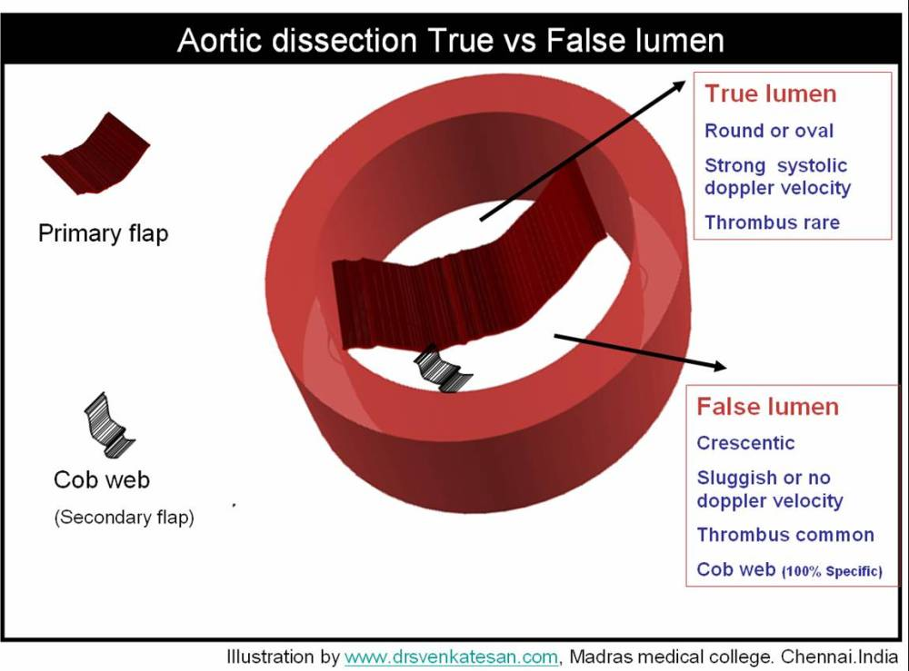 The Aortic dissection : What you wanted to know about true and false lumen ! (2/5)