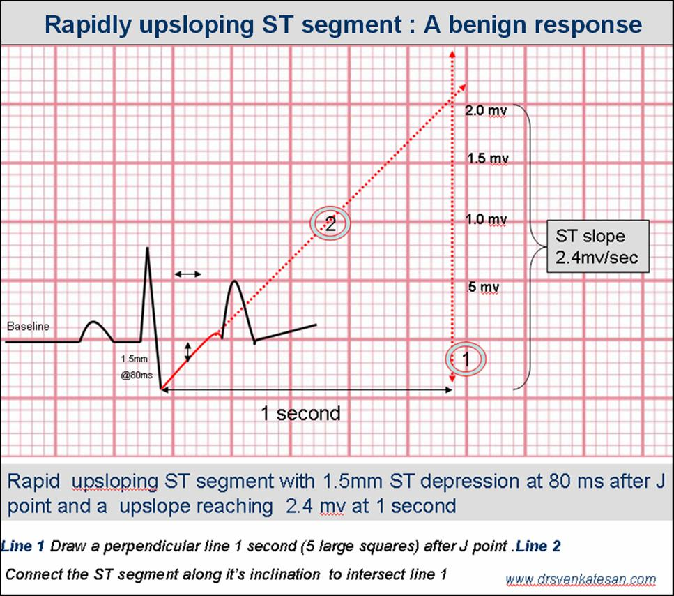 What is up sloping ST depression ? How do you measure it ? What is the clinical significance ? (2/2)