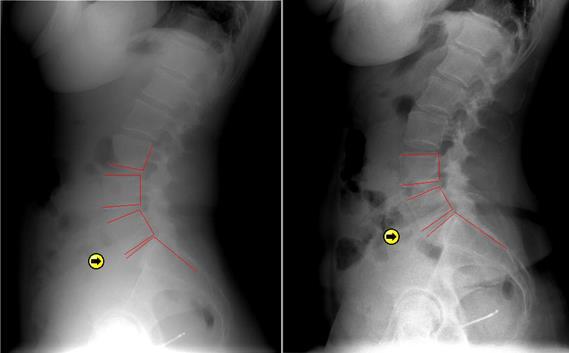 Spinal Decompression Case Studies - Dr  Darrell Swolensky