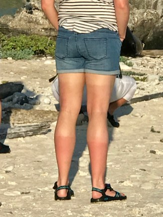 Staci, one of our companions from the US, achieved tri-level sunburn