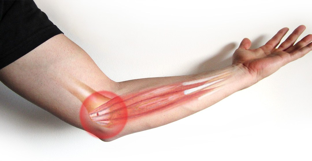 An Applied Kinesiology Approach to Golfer's Elbow