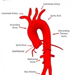 Human Anatomy Major Arteries Diagram Radio Wiring For 2001 Chevy Silverado Aortic. Causes, Symptoms, Treatment Aortic