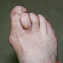 hammer toe pictures