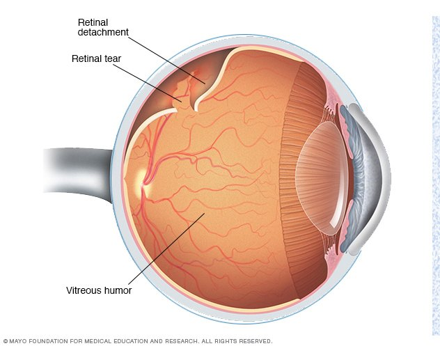 Retinal detachment Disease Reference Guide - Drugs.com