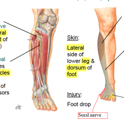 Lower Leg Nerve Diagram Pontiac Grand Prix Wiring Anterolateral Pain Or Foot Drop Peroneal Superficial And Deep Muscles