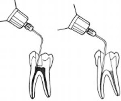 My Local Anesthetic Recipe for Endodontic Success
