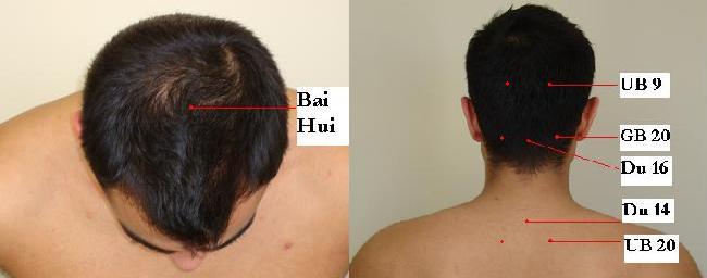 Articles | Jun Xu, M.D. (203) 637-7720 | Rehabilitation ...