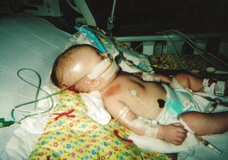 SHAKEN BABY SYNDROME: Penderaan Bayi yang Kejam