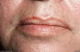 Fordyce spots oral