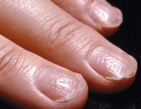 Psoriasis, nails
