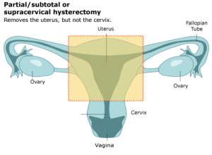 subtotal hysterectomy