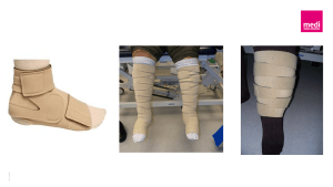 Juxtafit compression garments for chronic lymphoedema management