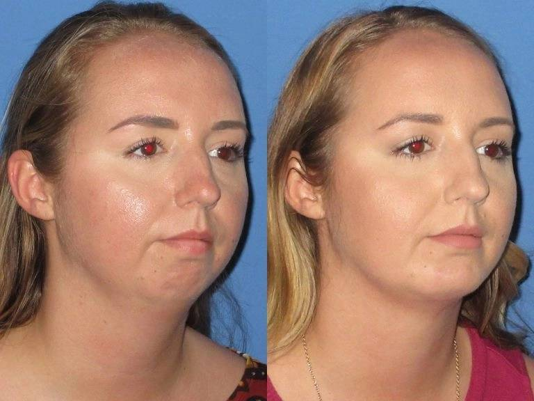 chin-implant-liposuction-compressed