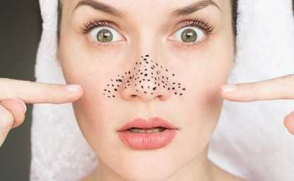 Blackheads Removal Clinic